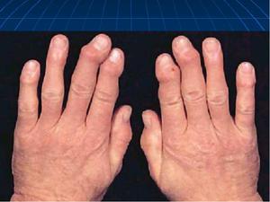 Какие есть степени поражения суставов
