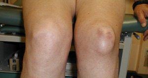 Синовита коленного сустава что это такое