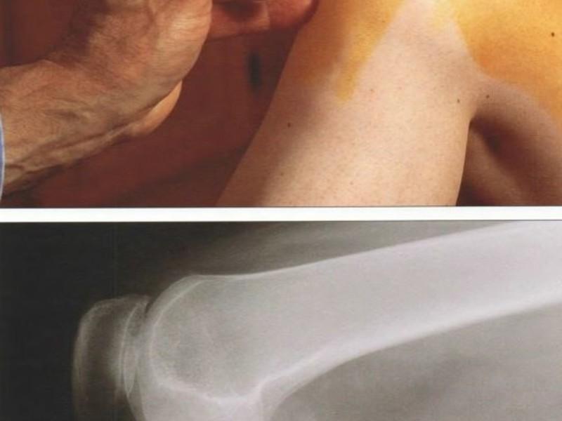 Синовит коленного сустава симптомы лечение диагностика классификация