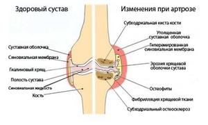 Какие бывают заболевания коленных суставов: описание, виды ...