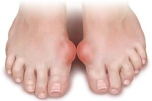 лечение при болях в суставах ног