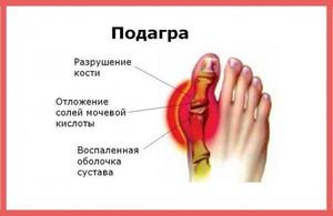 Отложения мочевой кислоты суставах лечение нарывов послеоперационной трвмы коленного сустава