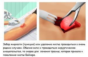Какими препаратами лечить кисту бейкера коленного сустава сытин оздоровление правого коленного сустава