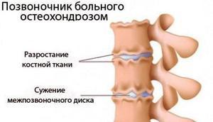 ВСД и шейный остеохондроз: симптомы, профилактика, лечение