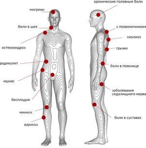 Дисбактериоз кишечника симптомы лечение у взрослых препараты