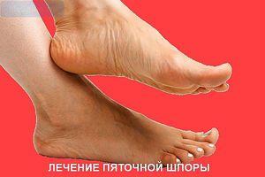 Кто лечит суставы и пяточные шпоры если крутят суставы