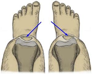 Разболтанность суставов у ребенка коксартроз тазобедренного сустава 1 степени фото