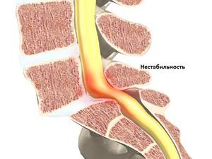 Артрит шейного отдела позвоночника симптомы и лечение