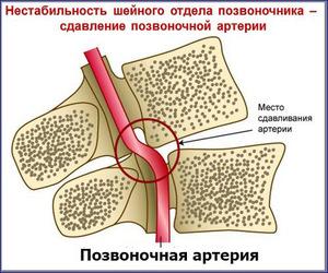 Нестабильность шейного отдела позвоночника