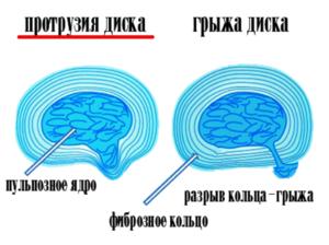 Протрузии межпозвонковых дисков поясничного отдела