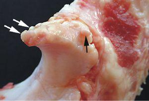 Остеофиты шейного отдела позвоночника: лечение шипов и других наростов