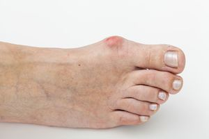 Лечение проблем с большим пальцем