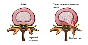 Защемление нерва в поясничном отделе позвоночника