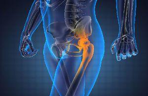 Болезни тазобедренных суставов: симптомы у женщин и мужчин ...