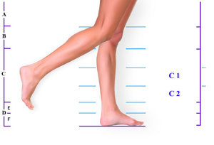 Как определить род заболевания ног