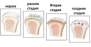 Доа тазобедренных суставов 1 степени лечение препараты для суставов харьков