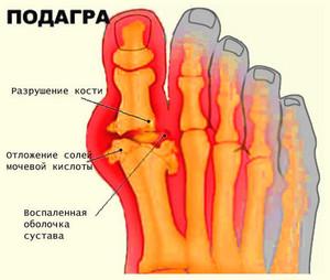 Все о лечении подагры на ногах в домашних условиях, специальная диета
