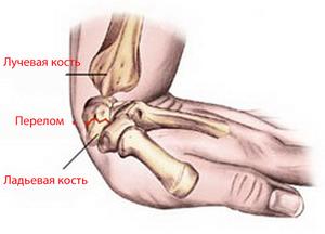 Болит сустав кисти что делать воспаление нервов в тазобедренном суставе