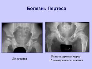 Болит нога в тазобедренном суставе лечение при контакте с кожей колбючее растение вызывает воспаление суставов