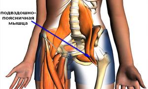 Тянет ногу от ягодицы до колена и стопы: причины заболевания
