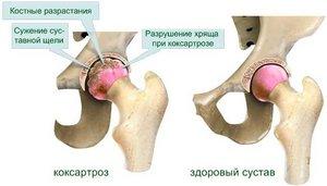 Коксартроз тазобедренных суставов суставов деформирующий артроз левого лучезапястного сустава 2ой степени