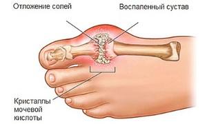 Особенности подагры: симптомы, как она протекает, анализы и лечение