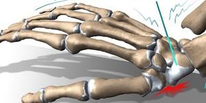 Трамва кости кисти