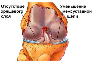Остеоартроз коленного сустава 2 степени
