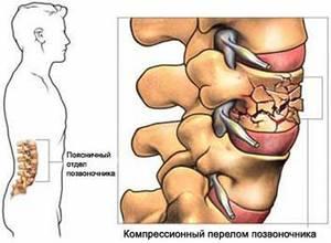 Болит поясница и грудные железы