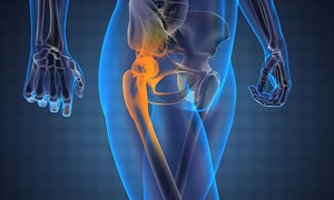 Помощь при боли в тазобедренном суставе: причины болей при ходьбе ...