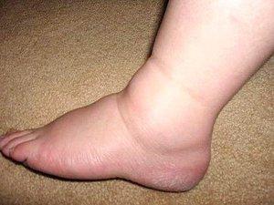Опухла нога в голеностопном суставе боль в суставах в предклимактерическом периоде