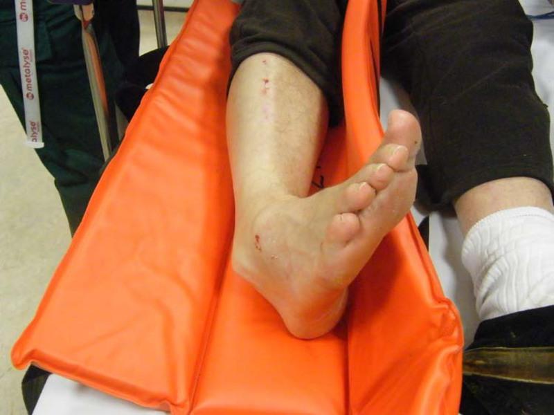 Частичный разрыв связок голеностопного сустава лечение