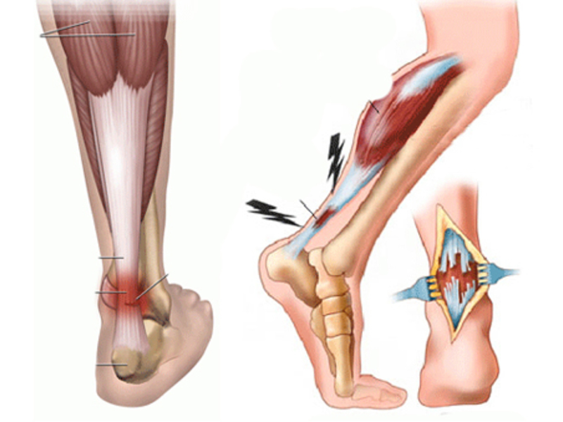 Разрыв связки голеностопного сустава