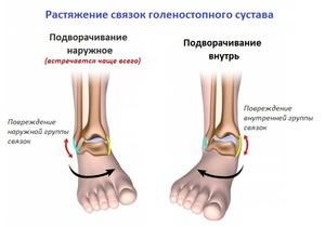 Лечение и симптомы надрыва голеностопного сустава упражнения для коленного сустава
