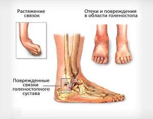 Лечение разрыва и растяжения связок голеностопного сустава ...