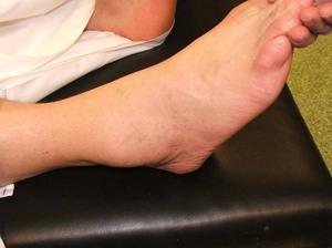 Болезни суставов голеностоп узи тазобедренных суставов расшифровка углов
