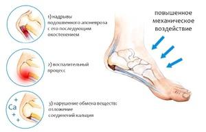 Как устроена стопа и пятка и почему она может болеть?