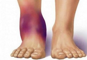 Что делать при сильном растяжении связок голеностопного сустава пластика крестообразных связок коленного сустава