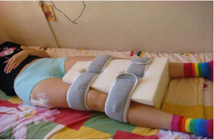 Как происходит замена тазобедренного сустава протезом