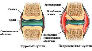 Разрушение хрящевого сустава воспален сустав большого пальца ноги