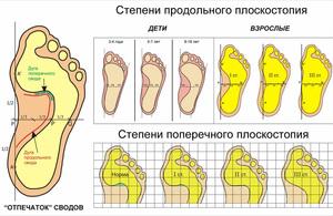 Плоскостопие - стадии развития болезни