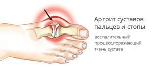 Артрит суставов ног - еще одна причина болей