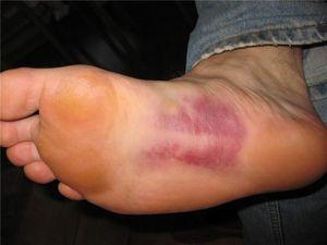 Травма стопы могут быть причиной болезненных ощущений