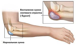 Шишка на локтевом суставе компресс для коленного сустава с димексидом