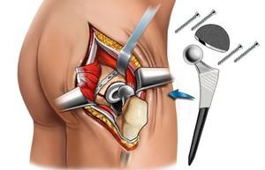 Операция по замене тазобедренного сустава: показания и процесс ...