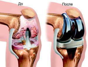 которая применяется с целью восстановления хрящевой ткани в суставах инструкция