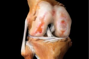 Лечение коленных суставов алоз могут ли из-за пониженного ттг болеть суставы