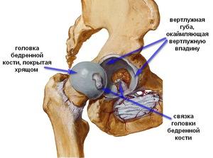 Боли в тазобедренном суставе у женщин болит тазобедренный сустав причины