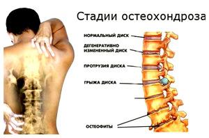 Остеохондроз шейного отдела симптомы как лечить причины возникновения