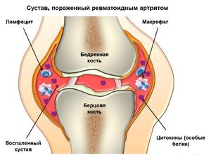 Чем лечить артрит и воспаление суставов что такое суппорт сустава